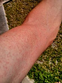 https://en.wikipedia.org/wiki/Zika_virus#/media/File:Zika.Virus.Rash.Arm.2014.jpg